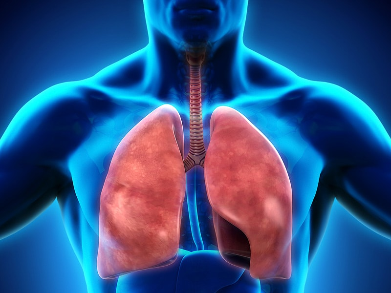 Coil Procedure Improves Exercise, QoL in Severe Emphysema