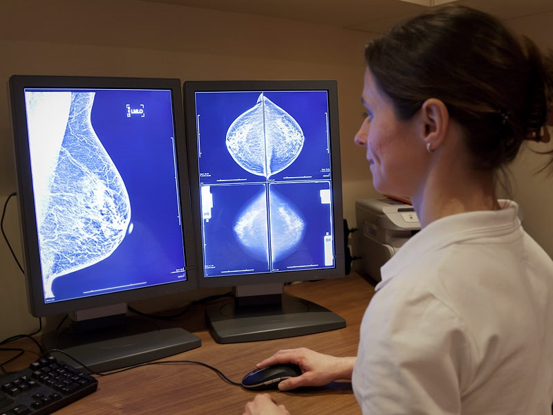 Women Older Than 75 Get Benefits From Mammograms 3