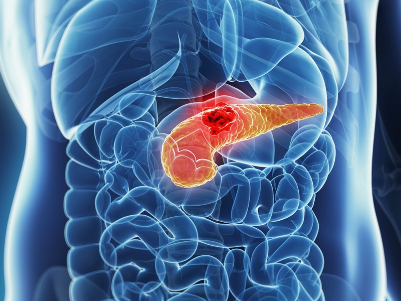 Study Challenges Current View Of Pancreatic Cancer Evolution