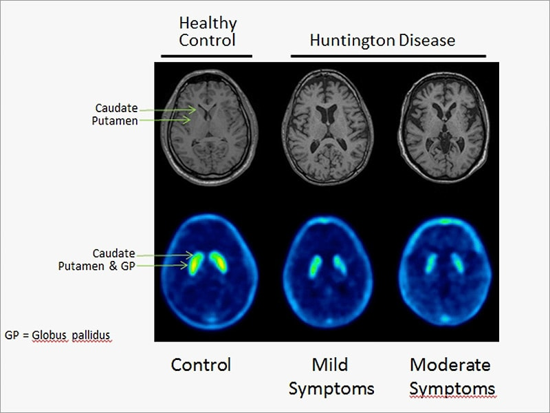 hauntington disease It must be acknowledged, too, that it is very difficult to make judgements about the rationality or otherwise of a decision to commit suicide after a positive test result and/or the onset of symptoms, given the certainty of the diagnosis, the appalling nature of the disease and the lack of treatment.