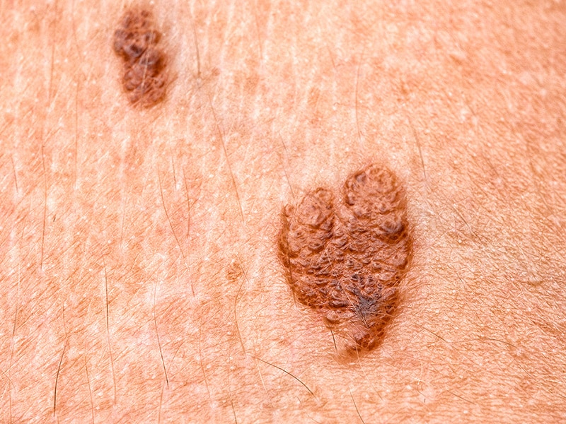 melanoma, parkinson's: see one, be aware of the other, Human Body