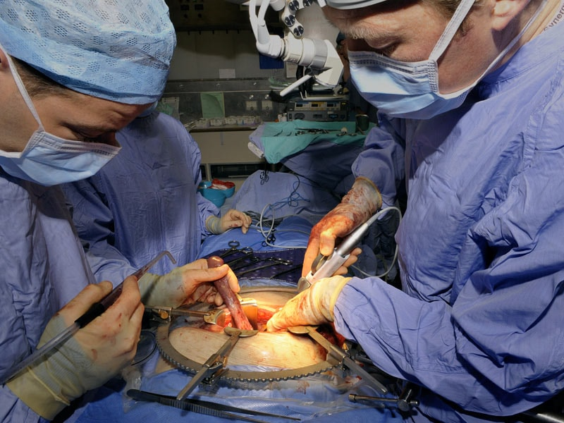Surgery Still Underused in Early Pancreatic Cancer