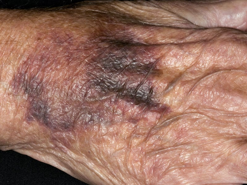 Why the Sudden-Onset Bruising in a Warfarin Patient?