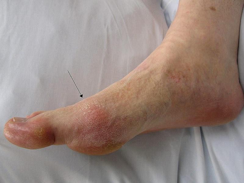 Foot Gout 42
