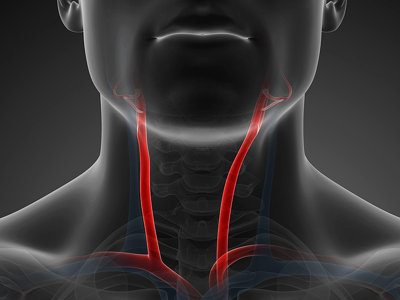 Higher Stroke Death With Balloon Inflation After Carotid