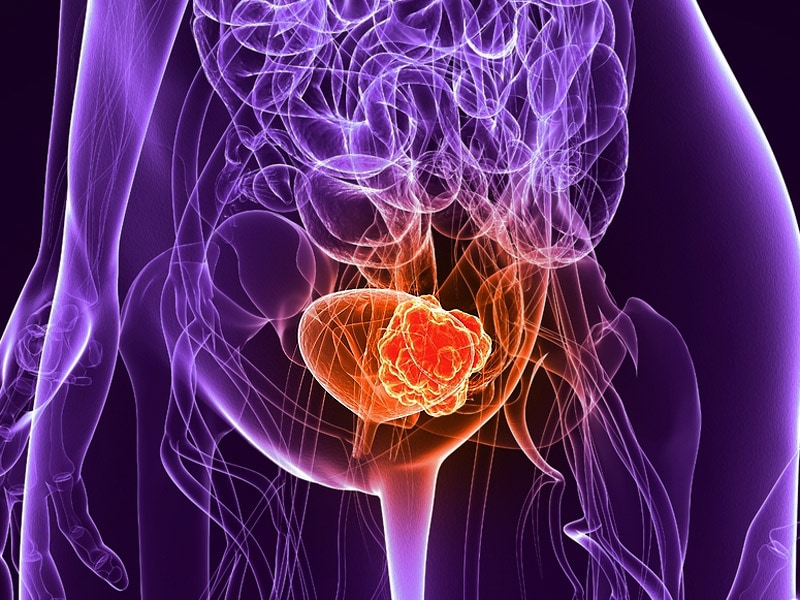 Chemohyperthermia Shows Promise in Nonmuscle Bladder Cancer
