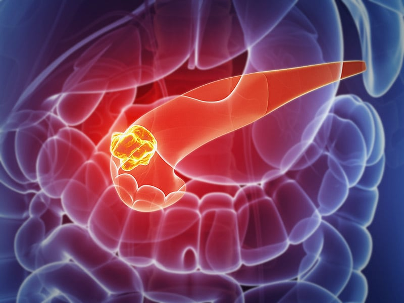 MRI Screening for Pancreatic Cancer Works, but Is Expensive