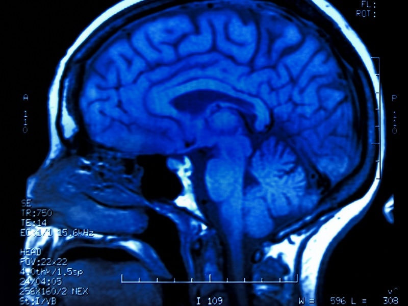 GLP-1 Agonist Alters Brain Response to Seeing,     Eating Food
