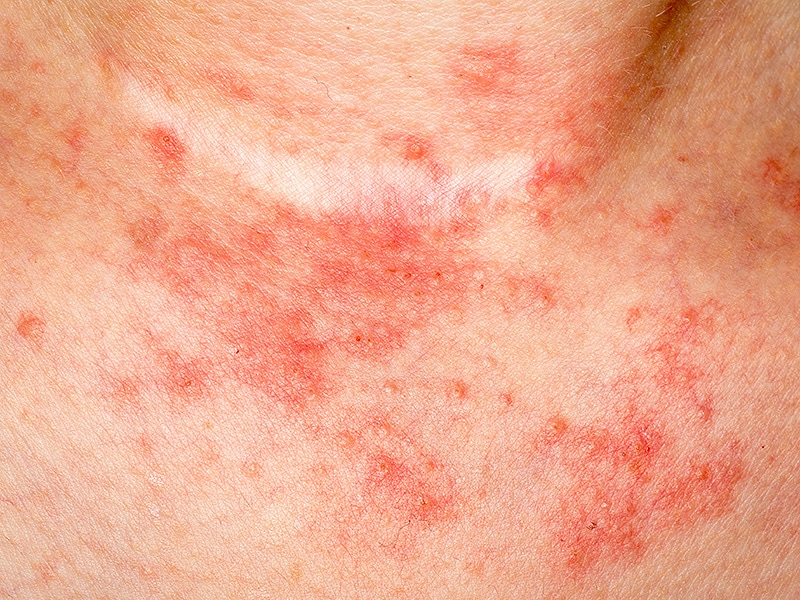 Fda Clears Secukinumab Cosentyx For Plaque Psoriasis