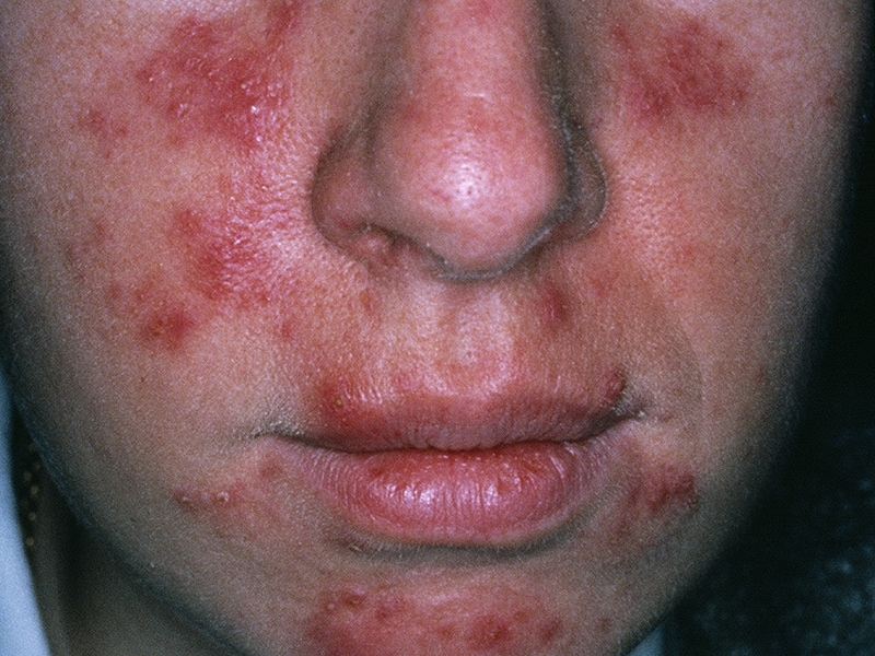 Once-Daily Ivermectin Safe and Effective Rosacea Treatment