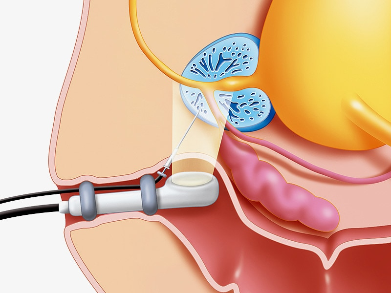 Transperineal Prostate Biopsy Well Tolerated Study Shows