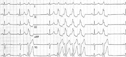 Repetitive monomorphic ventricular tachycardia (V...