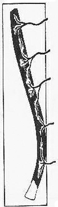 Flexor digitorum longus, extensor hallucis longus, vastus medialis,