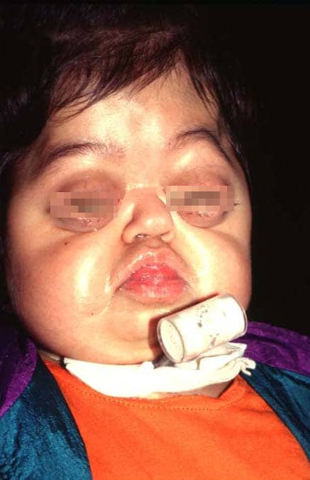 Pfeiffer Syndrome With pfeiffer syndrome.