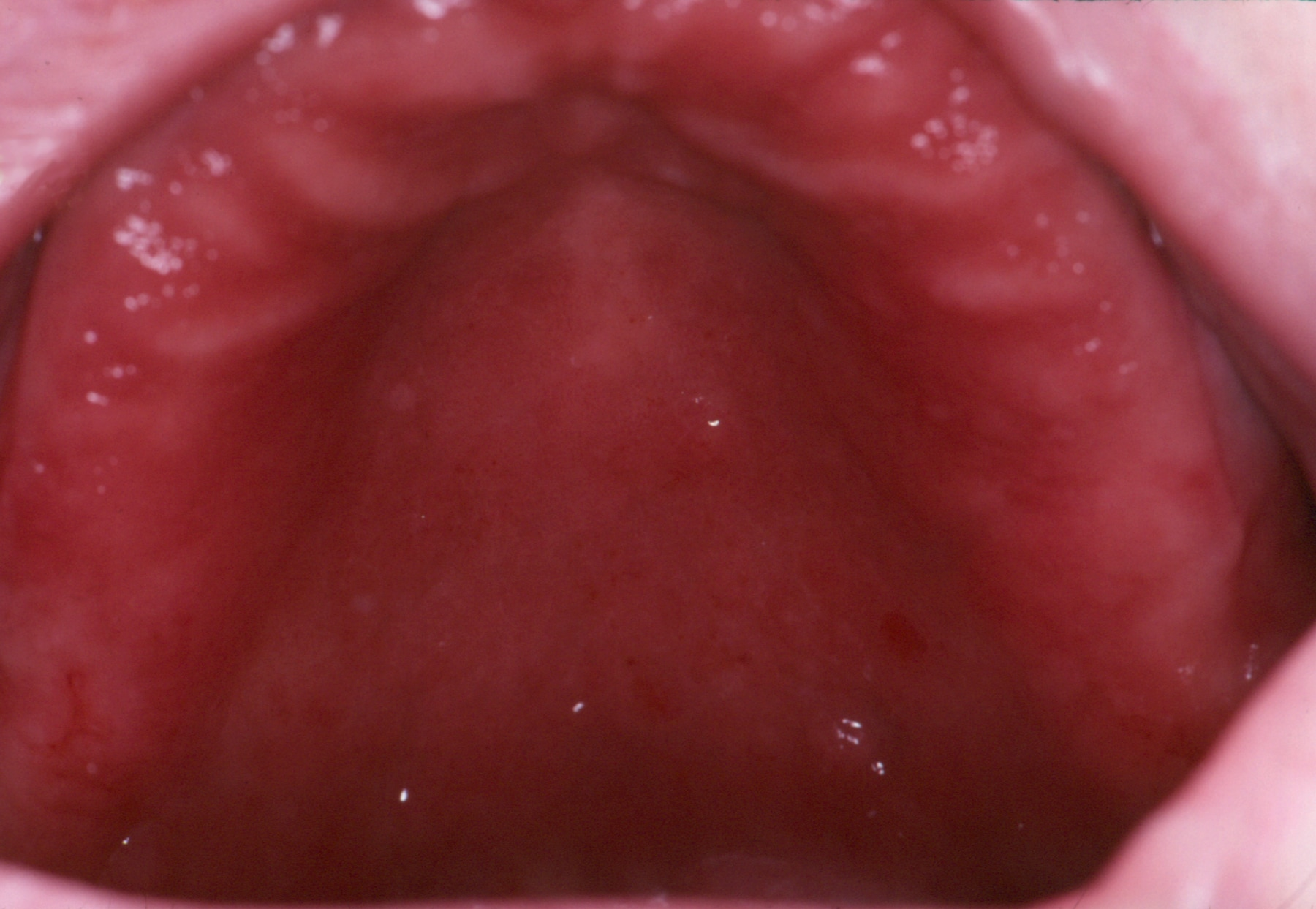 Stomatitis, Denture