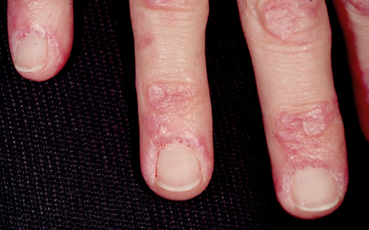 Gottron papules and nail fold telangiectasia are ...