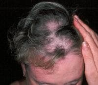 A diffuse alopecia with a scaly scalp dermatosis ...