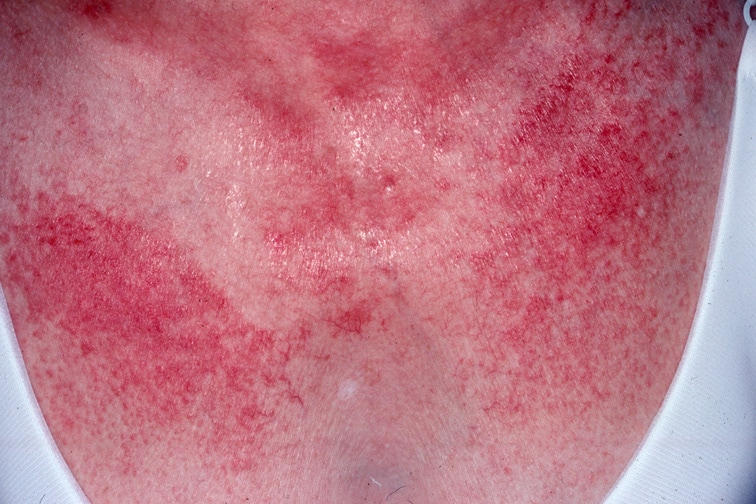Dermatomyositis is often associated with a poikil...