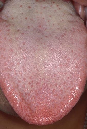 inflamed taste bud. form of taste bud papillae