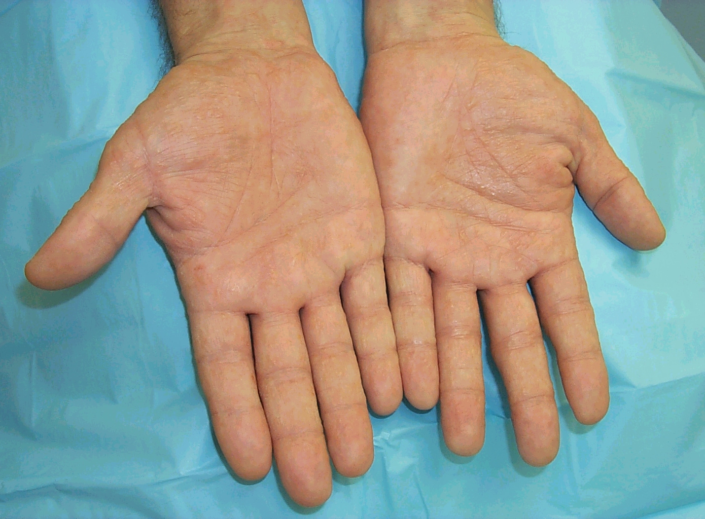 Dry Cracking Skin on the Hands & Fingers | LIVESTRONG.COM