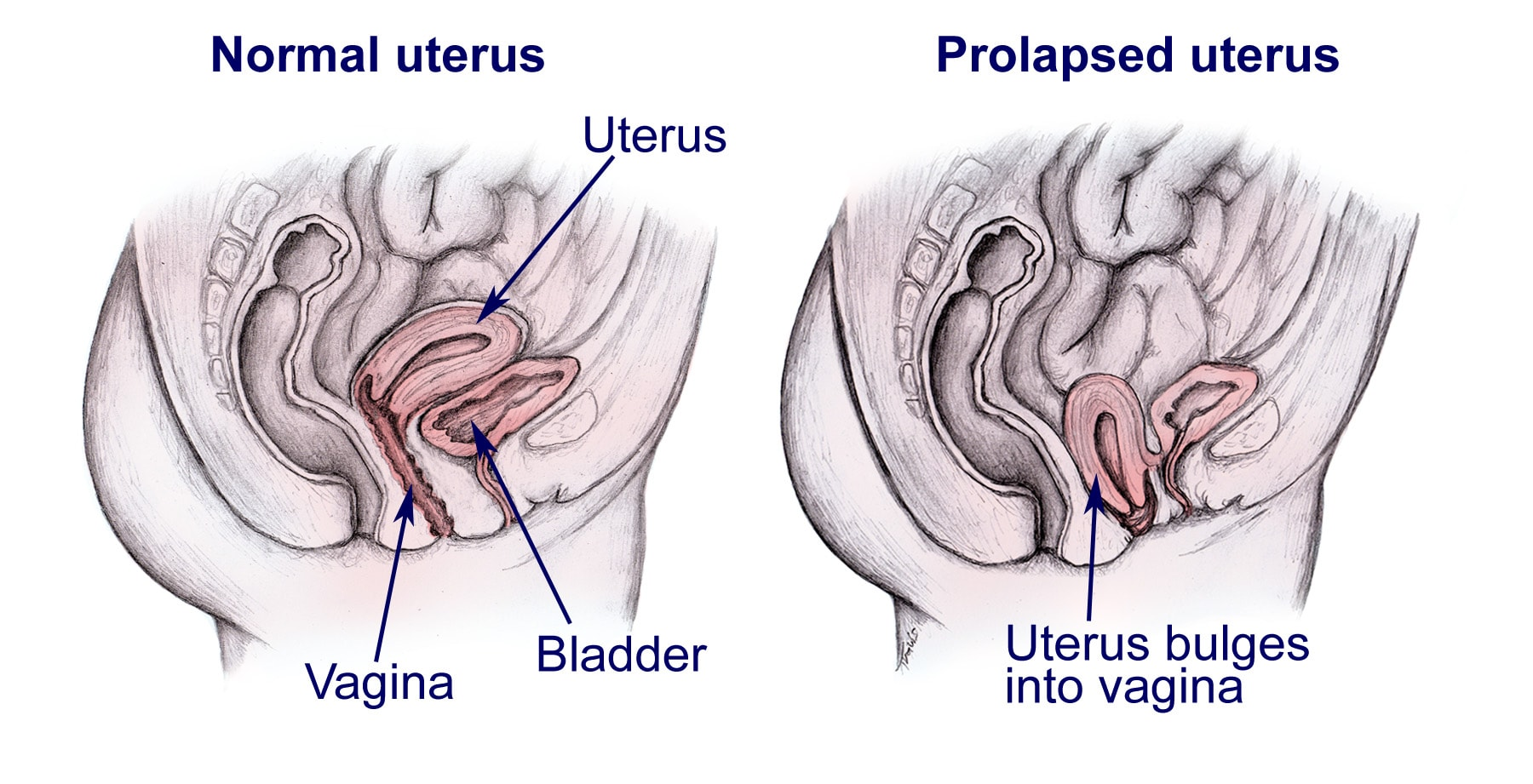 Prolapse Bladder Weakness