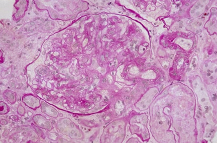 Pathology Outlines - Radiation nephropathy