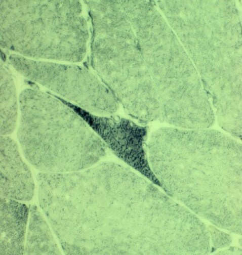 Neurogenic atrophy. Nicotinamide adenine dinucleo...