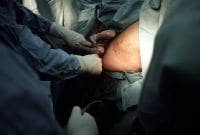 Footling breech presentation. Once the feet have ...