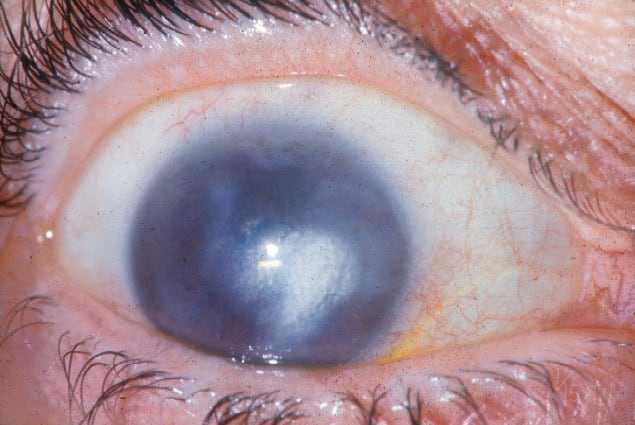The gallery for --> Herpes Zoster Keratitis