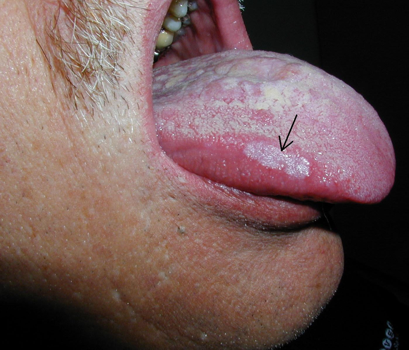 dry mouth and burning tongue causes