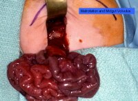 Malrotation and midgut volvulus with intestinal is