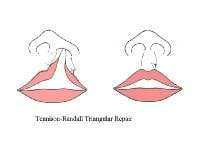 Craniofacial, Unilateral Cleft Lip Repair  1271089-1279641-711tn