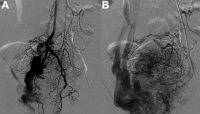 Vascular Surgery for Arteriovenous Malformations Workup