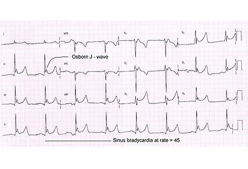 Six Abnormal ECGs — Not All Are Cases of the Heart: Slideshow