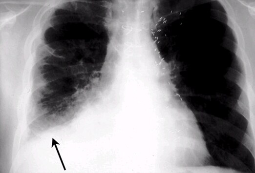 Right Lower Lobe Infiltrate Chest X-ray