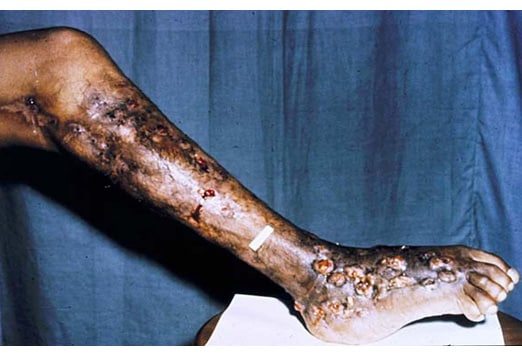 Cutaneous Funga... Diseases Caused By Fungi In Humans
