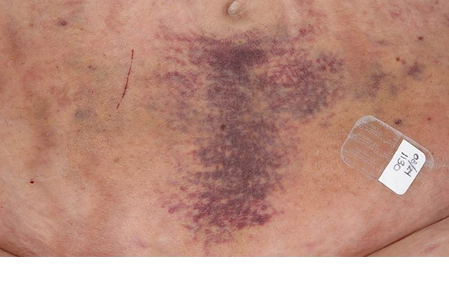 14 Skin Lesions Caused by Cancer Chemotherapy