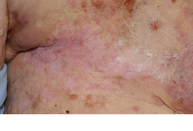 purple patches on skin leukemia