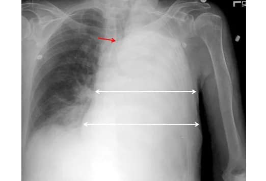 What to Look for on a Chest X-Ray: Slideshow