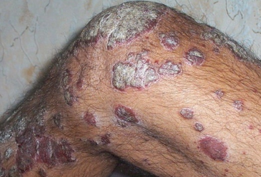 Common Cutaneous Complications in HIV-Positive Patients