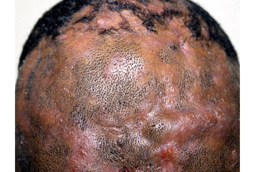 Not-to-Miss Diseases Presenting as Hair Loss: Slideshow