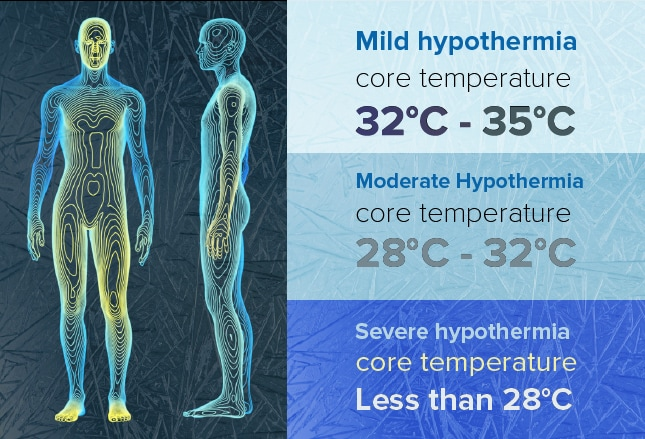 Treating Hypothermia: What You Need to Know