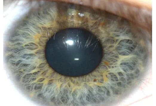 Abnormalities Of The Iris Can Result From Trauma Infection Neoplasm Or Genetic Reasons Changes Reflect Systemic As Well Strictly Ocular