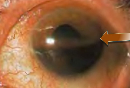 What the Eyes Tell You: Abnormalities of the Iris