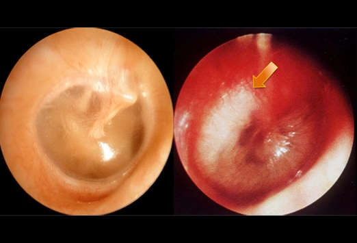 left image in otitis media right image a purulent effusion arrow may ...