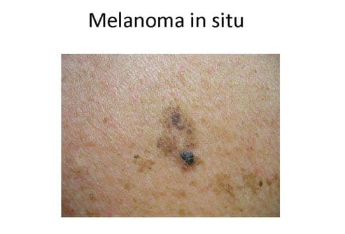 Mole or Melanoma? Tell-Tale Signs in Benign Nevi and