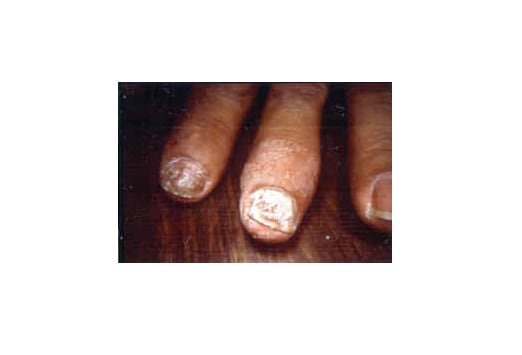 Diseases of the Nails: Slideshow