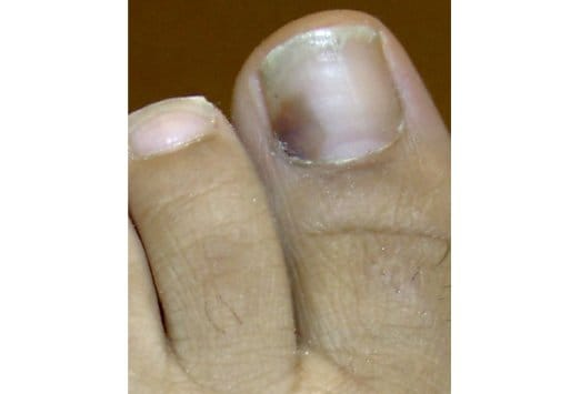Diseases Of The Nails Slideshow