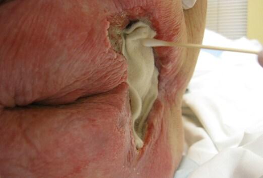 stones in gallbladder