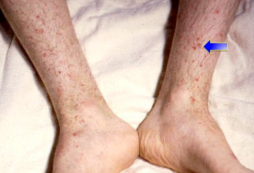 Differential Diagnosis: Petechial Rash Differential Diagnosis
